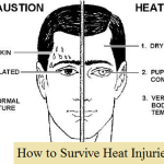 Preventing & Treating Heat Injuries