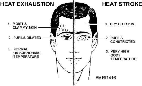 id  u0026 treat heat exhaustion or stroke