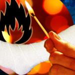 SHTF Burn Treatments
