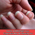 What Your Fingernails Can Tell About Your Health