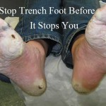 Stop Trench Foot Before It Stops You