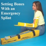 Setting Broken Bones with a Emergency Splint
