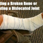 Setting a Broken Bone or Treating a Dislocated Joint