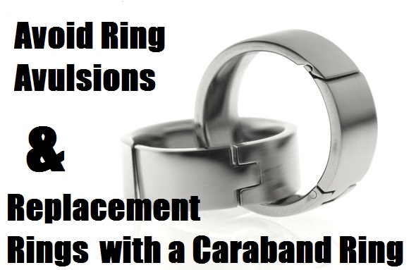 Avoid Ring Avulsions & Replacement Rings With a Caraband Ring
